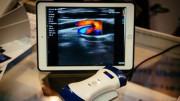 ساخت دستگاه تصویربرداری پیشرفته پوست در کشور